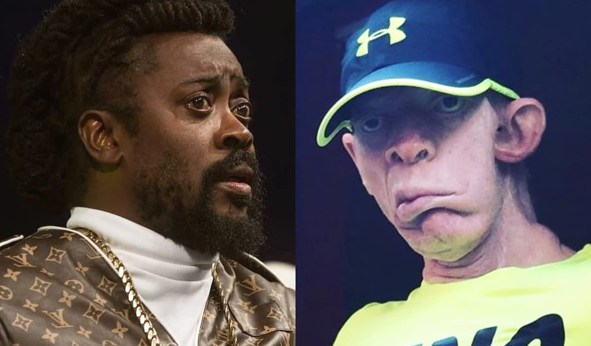 Yellowman Not Pleased Beenie Man's Remake of 'Zungguzungguguzungguzeng'
